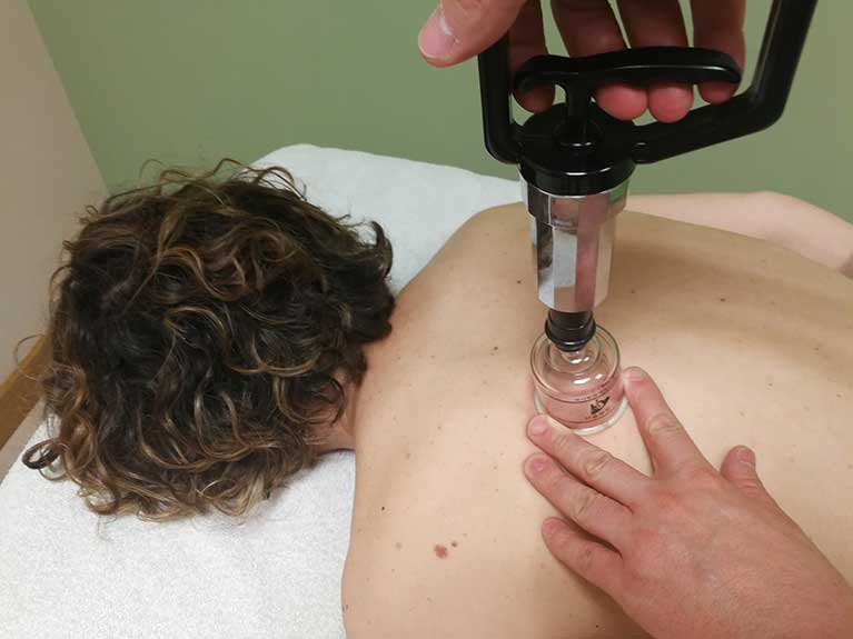 Fisioterapia invasiva - Ventosas-cupping